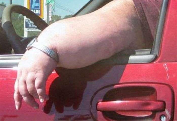 Люди, які страждають від ожиріння (17 фото)