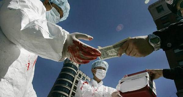 Продай почку, купи новый iPad!: 15 ужасных фактов о трансплантации органов Интересное
