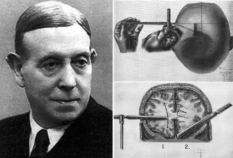 Лоботомия. История потрошения мозгов, или Самая постыдная Нобелевская премия история